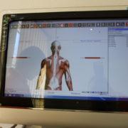 EMG-Bildschirm mit pathologischem Trapezius-Befund in der Orthopädie am St. Lambertiplatz.